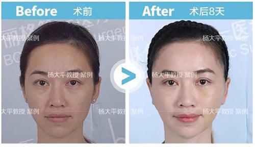 面部提升,有最好的方式吗?联合丽格面