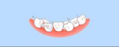 """孩子四五岁就能矫正牙齿?听听资深口腔医生怎么说"""""""